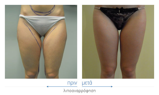 Liposuction Before and After