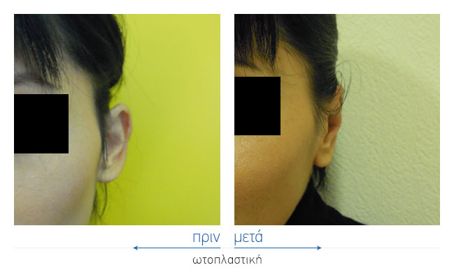 Otoplasty Before and After